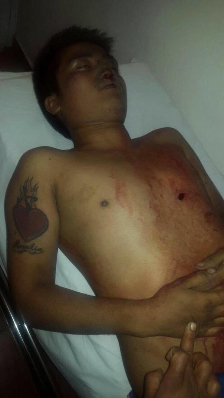 Entre las víctimas se encuentran personas como Yalid Jiménez Santiago, padre de familia de 29 años de edad que circulaba en una camioneta Urban cuando la Policía Federal comenzó a disparar; el profesor de educación indígena de 23 años de edad, Andrés Aguilar Sanabria o el estudiante de secundaria Antonio Pérez García, entre otros.